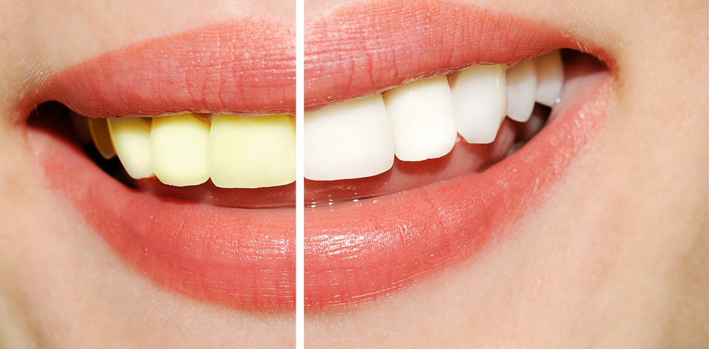 How Does Professional Teeth Whitening Remove Stains