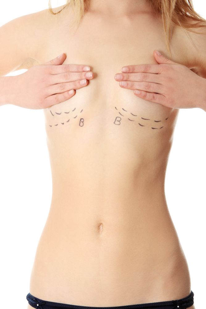 Ten Common Reasons Women Undergo Breast Augmentation