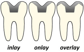 dental-inlay-onlay-overlay