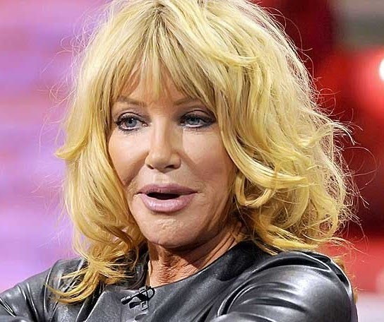 Suzanne Somers The Face of Beauty No More