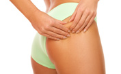 Anti-Cellulite Options: Exercises, Healthy Diet Tips, and Other Home Remedies for Cellulite
