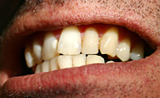 Are You a Teeth Grinder?  Here's How To Stop Bruxism Problems Cold