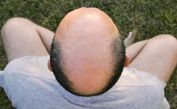 The Cure for Your Bald Scalp May Be as Simple as Getting Someone Else's
