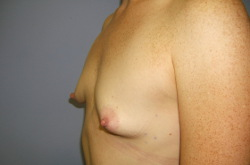 recovery time for breast agmentation jpg 1080x810
