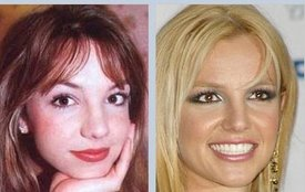 Britney Spears rhinoplasty