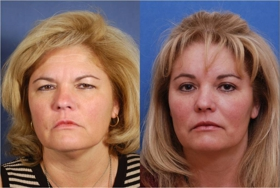 Brow Lift Cosmetic Surgery: Read About Recovery Time