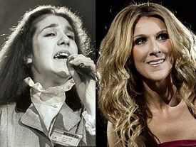 Celine Dion Cosmetic Dentistry Dental Crowns Teeth Whitening