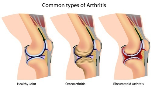 An illustration of the different types of arthritis