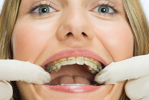 dental-adult-braces. There are a variety of dental treatment options that ...