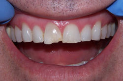 Dental Tooth Bonding - Cost, Benefits & Uses