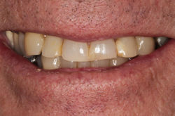 View Dental Bridge Before After Photos