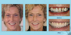 Dental Bridges Before and After Photo