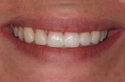 93ced6c5733 View Dental Crown Before   After Photos