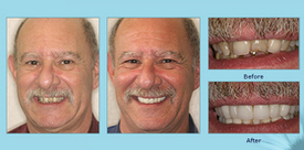 Dental Crowns Before and After Photo