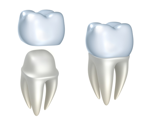 dental-crowns-inline