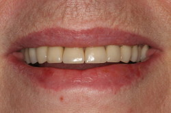 Dental Implant Patient - after