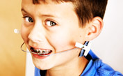 Minimize Your Child's Need for Braces with Early Orthodontic Treatment