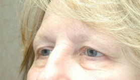Eyelid Surgery (Blepharoplasty) - Recovery and After-care