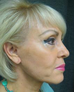 Face Lift Prices - Cost of Face Lift Surgery & Financing