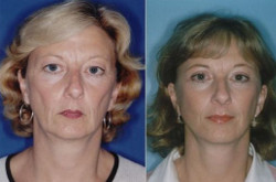 Face Lift Surgery - Types of Lifts, Cost, Recovery & Results, Risks