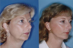 Face Lift Surgery - Types of Lifts, Cost, Recovery & Results