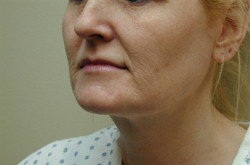 Lower Facelift Cost, Recovery, Results