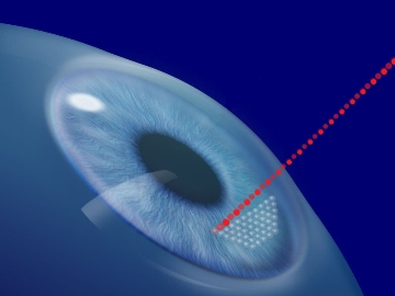 lasik_technology