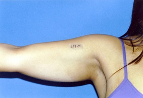 Smartlipo Laser Liposuction Costs, Risks, Recovery