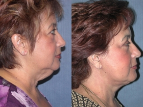 Neck Lift Surgery Costs Results Risks Recovery