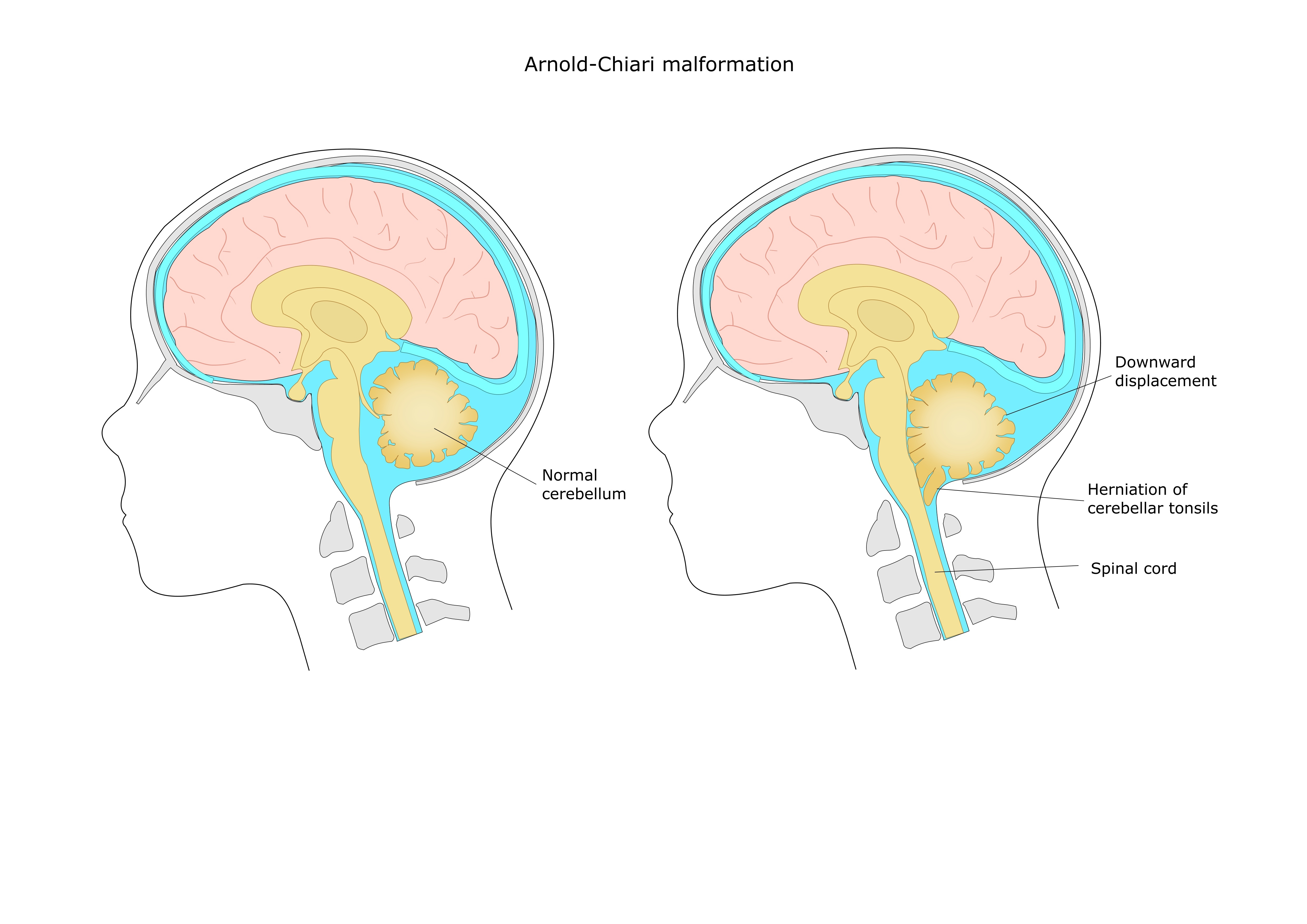 An illustration of Arnold-Chiari malformations