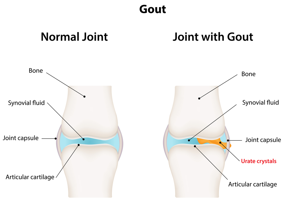An illustration depicting what happen when a patient suffers from gout