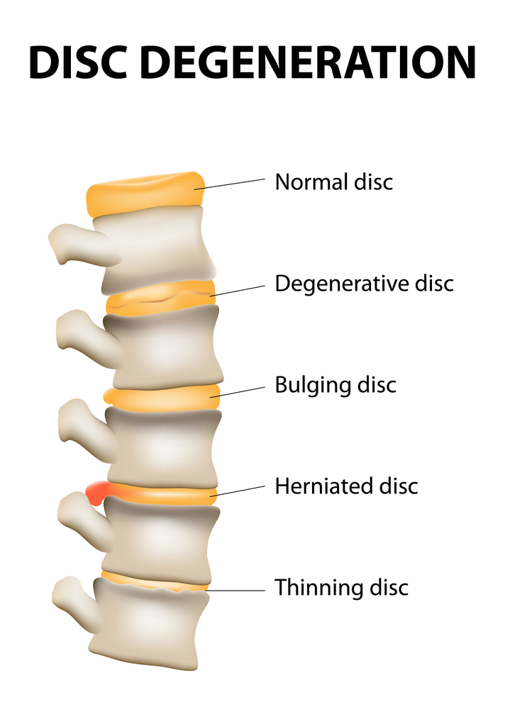 An illustration of a herniated disc