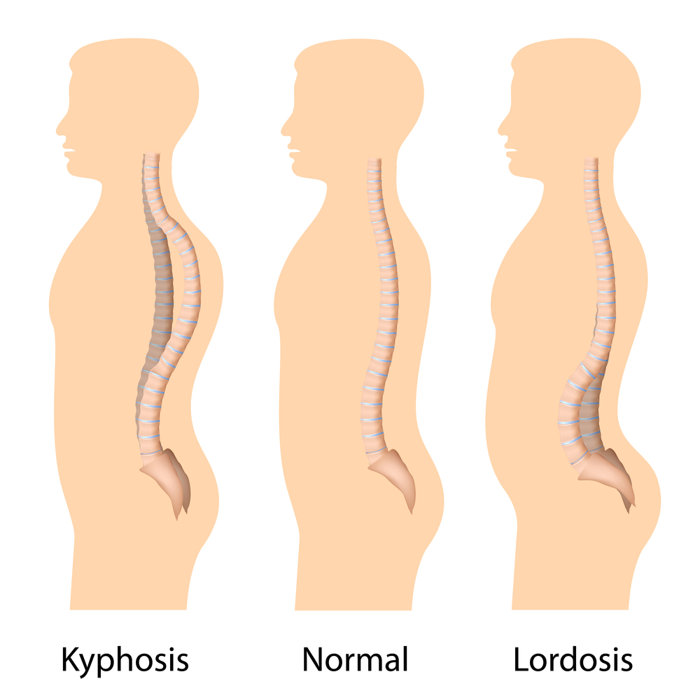 An illustration of kyphosis