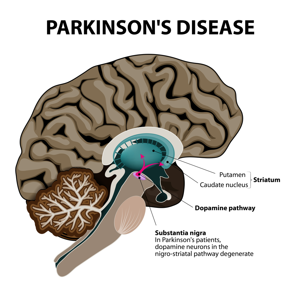 An illustration of a brain with Parkinson's Disease