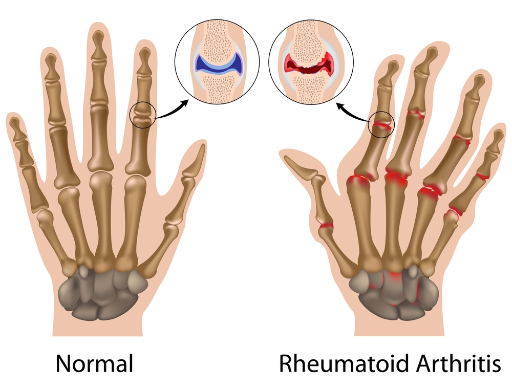 An illustration depicting what happen when a patient suffers from rheumatoid arthritis