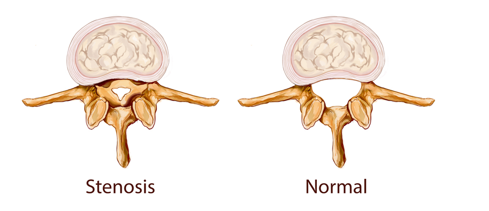 An illustration of spinal stenosis
