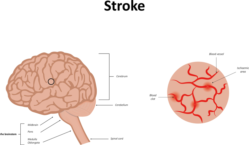 An illustration of a stroke