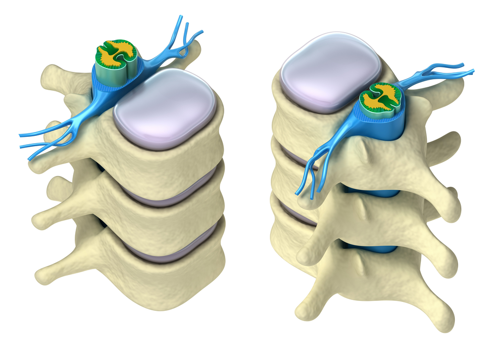 Neuro-Spine Surgery