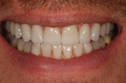 Best Dentist Near Me >> Porcelain Veneers - Cost, Benefits, Risks & Lifespan
