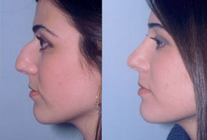Rhinoplasty Results Photo1