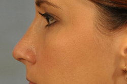 Rhinoplasty - Cost, Recovery & Risks