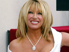 Suzanne Somers before face lift surgery
