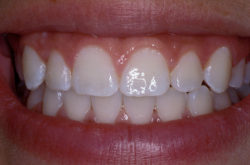 Teeth Whitening Cost Types Results Risks