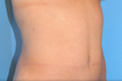 423df7d0fea View Tummy Tuck Before   After Photos