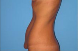 Tummy Tuck After Picture 1