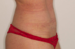 Tummy Tuck After Picture 10