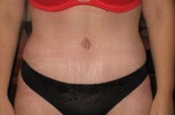 Tummy Tuck After Picture 7