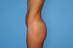 Tummy Tuck Before Picture 1