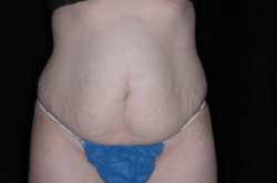 Tummy Tuck Before Picture 4