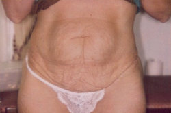 Tummy Tuck Before Picture 8